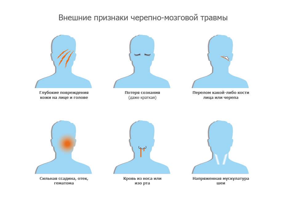 Черепно-мозговые травмы - признаки, первая помощь-2-02.jpg